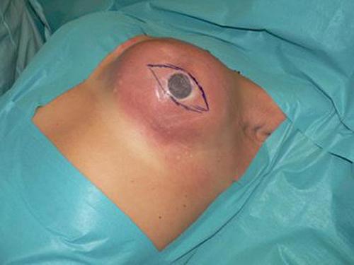 Hoảng hồn những tai nạn vỡ mông, ngực vì silicon 11