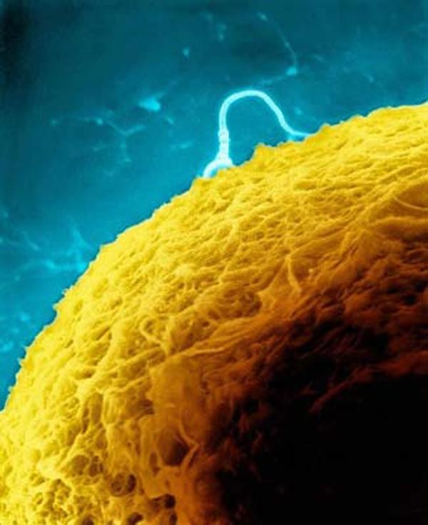 """""""Soi"""" quá trình thụ thai dưới ống kính hiển vi 6"""