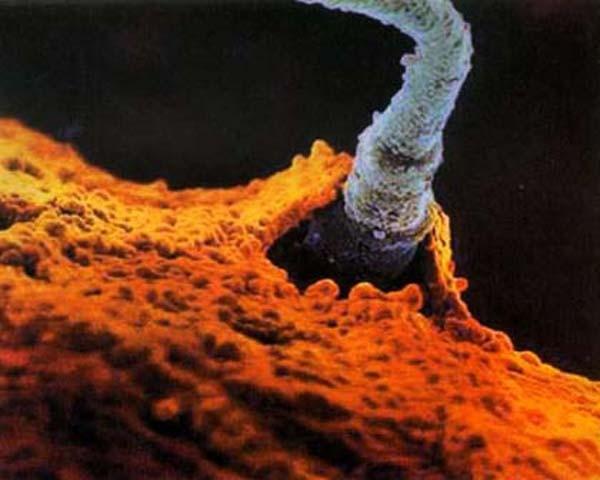 """""""Soi"""" quá trình thụ thai dưới ống kính hiển vi 7"""