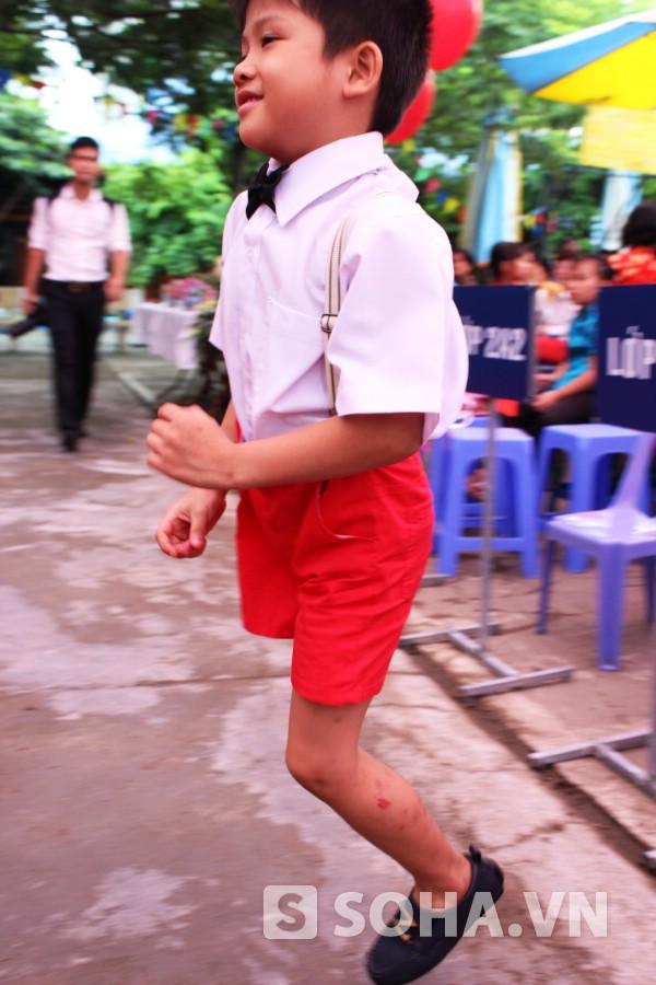 Mặc dù chỉ với một chân nhưng cậu bé Thiện Nhân rất tinh nghịch, vui đùa hòa đồng với các bạn bè trên lớp. Thiện Nhân rất nhanh nhẹn, chạy nhảy khắp sân trường.