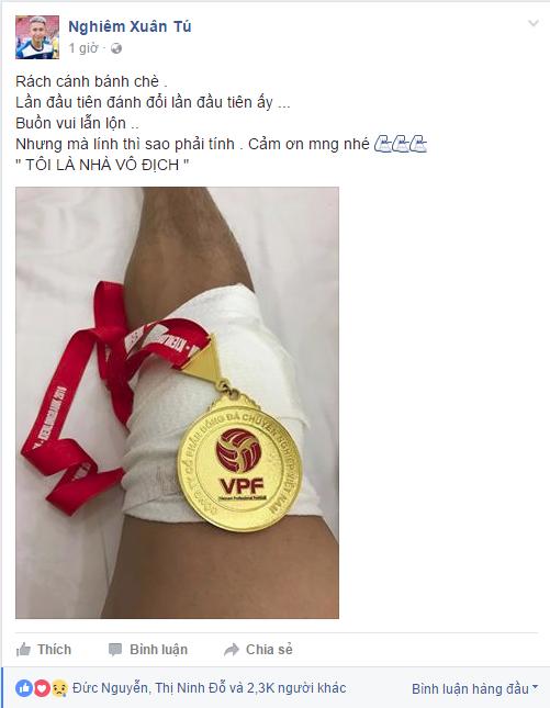 Sao Việt được 2 CLB Đức đặt gạch phản ứng tếu táo sau chấn thương
