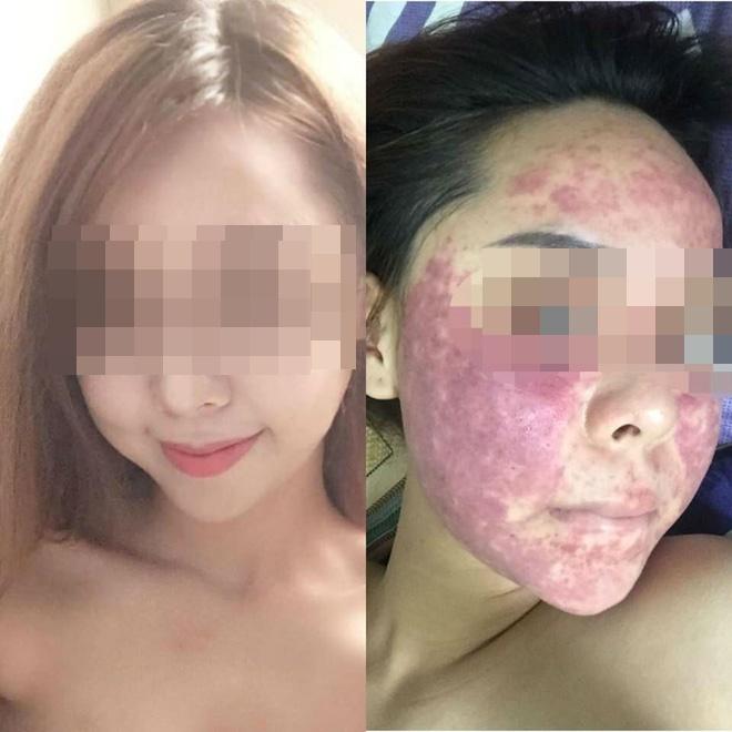 Cô gái chịu hậu quả nặng nề sau khi dùng kem thảo dược - Ảnh 1.