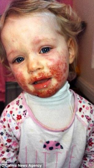 Khuôn mặt bé gái 2 tuổi như bị tạt axit: Đau lòng khi lỗi do thói quen của người lớn - Ảnh 1.