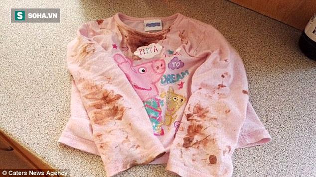 Khuôn mặt bé gái 2 tuổi như bị tạt axit: Đau lòng khi lỗi do thói quen của người lớn - Ảnh 2.