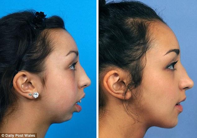 Ca phẫu thuật thay đổi hoàn toàn cuộc đời của cô gái 20 tuổi - Ảnh 1.