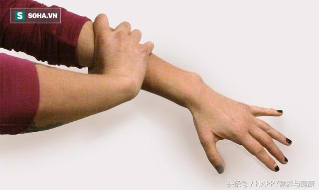 Khi gặp 6 dấu hiệu nguy hiểm này, bạn nên cảnh giác và khẩn trương đi khám - Ảnh 2.