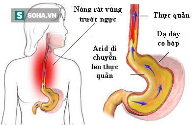 Lưu ý khi mắc chứng trào ngược dạ dày - Ảnh 1.