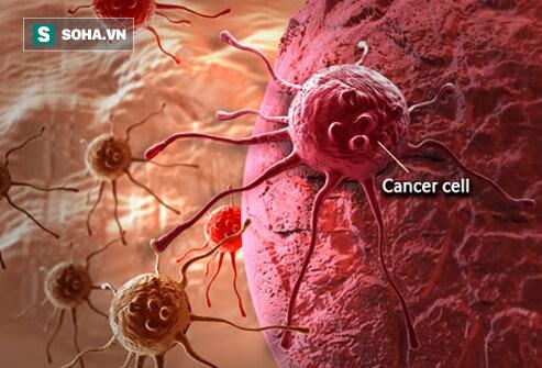 Phát hiện phương pháp vô hiệu hóa sự lan rộng tế bào ung thư - Ảnh 1.