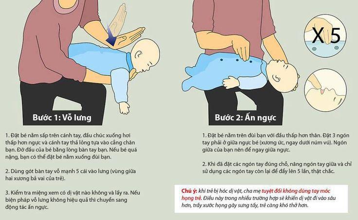 Kết quả hình ảnh cho hóc dị vật ở trẻ em