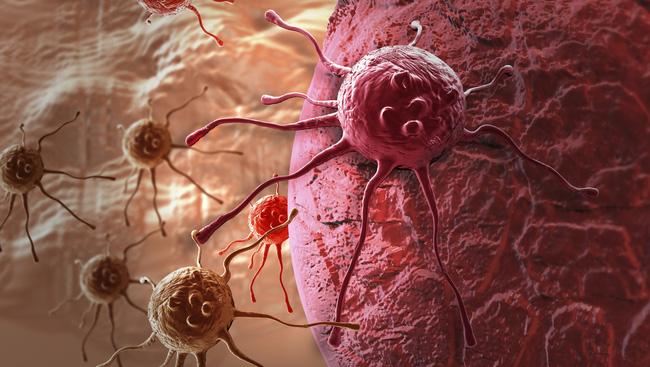 Người trẻ mắc ung thư ngày càng nhiều và lý do khiến ai cũng giật mình - Ảnh 1.