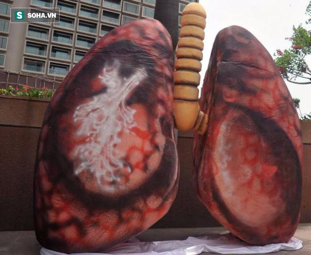 Khói thuốc là nguyên nhân chính gây ung thư phổi ở phụ nữ - Ảnh 2.
