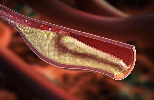 Cholesterol cao rất nguy hiểm, đây là 10 lời khuyên giúp bạn phòng tránh - Ảnh 1.