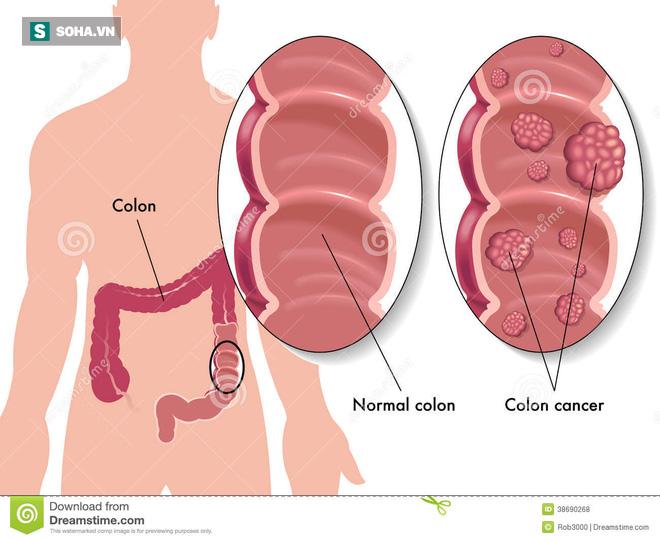 7 dấu hiệu sớm của bệnh ung thư trực tràng - Ảnh 1.