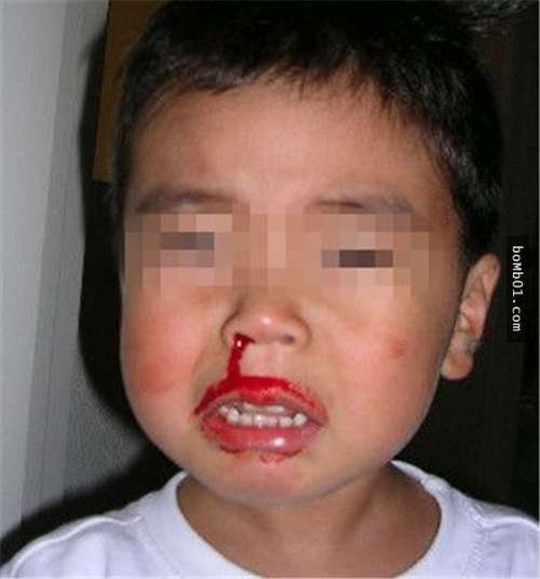 Con trai 2 tuổi qua đời vì chảy máu cam, mẹ hối hận phát điên khi biết nguyên nhân - Ảnh 1.