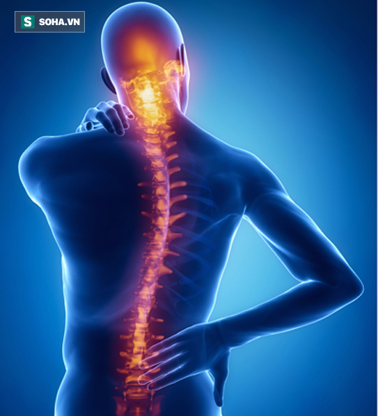 Bác sĩ hướng dẫn tập chữa mỏi lưng, đau cột sống.