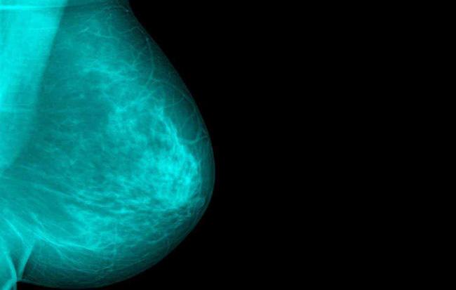 Cẩn trọng với 4 dấu hiệu ai cũng tưởng bình thường nhưng hóa ra là biểu hiện âm thầm của bệnh ung thư vú - Ảnh 2.