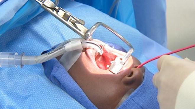 Biến chứng nguy hiểm có thể xảy ra khi cắt amidan - Ảnh 1.