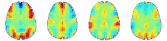 Khi giải quyết 1 bài toán, não bộ của bạn trông như thế này! - Ảnh 1.