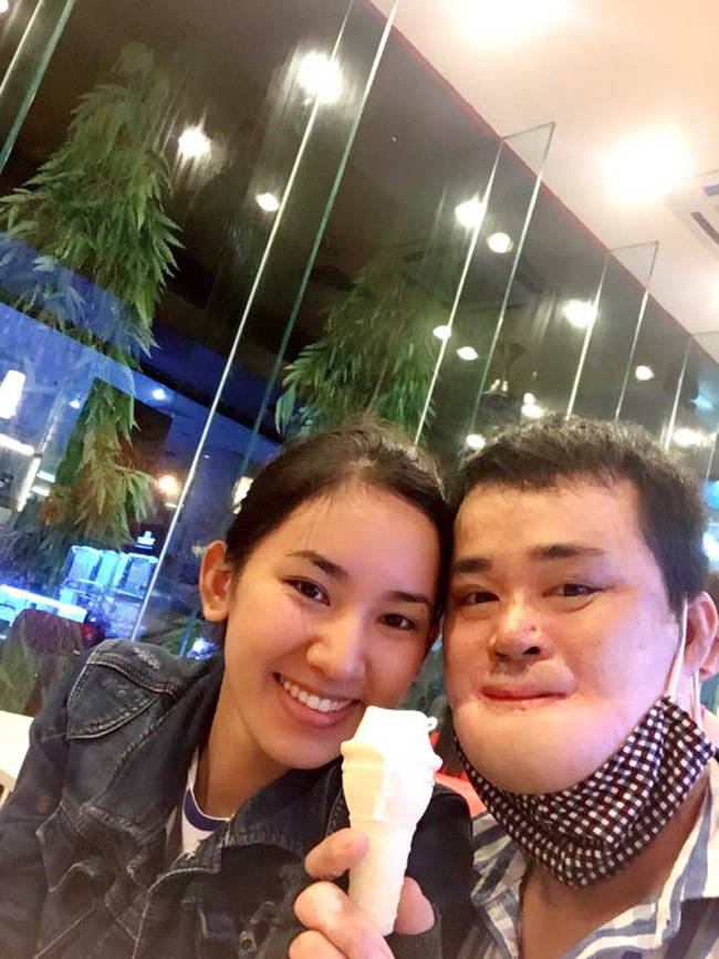 Chuyện tình cảm động của chàng trai bỏng nặng đến biến dạng khuôn mặt và cô gái Bắc Giang xinh đẹp - Ảnh 2.