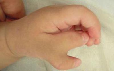 Thai nhi bị dị tật vì người mẹ làm móng lúc mang thai 3 tháng - Ảnh 3.