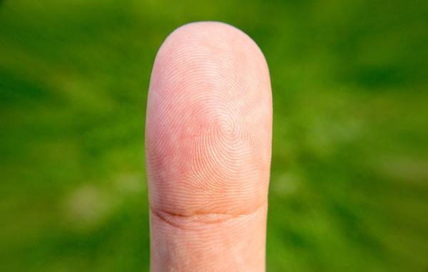 Chỉ cần nhìn tay, bạn sẽ dự đoán được mình có mắc 6 bệnh nguy hiểm này không - Ảnh 3.