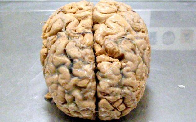 Khi giải quyết 1 bài toán, não bộ của bạn trông như thế này! - Ảnh 2.