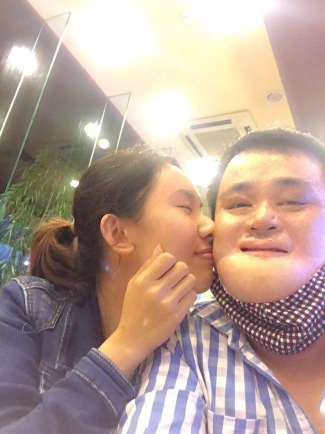 Chuyện tình cảm động của chàng trai bỏng nặng đến biến dạng khuôn mặt và cô gái Bắc Giang xinh đẹp - Ảnh 3.