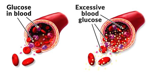 9 điều thực sự xảy ra bên trong cơ thể khi bạn ăn quá nhiều đường - Ảnh 7.