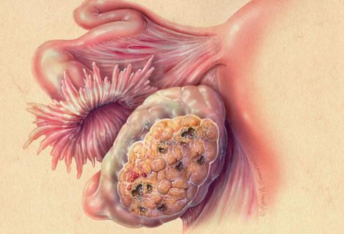 Dấu hiệu sớm phát hiện ung thư buồng trứng - Ảnh 7.