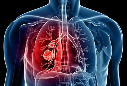 9 bộ phận cơ thể bị hủy hoại bởi thuốc lá - Ảnh 8.