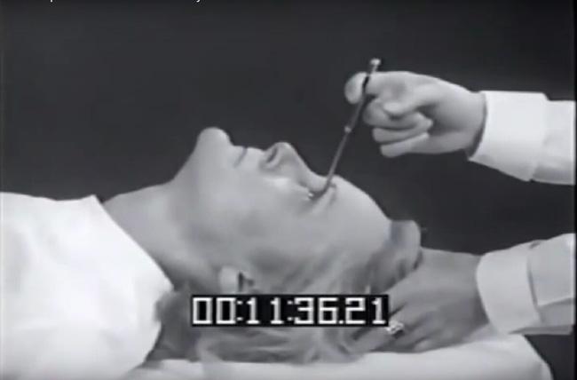 7 phương pháp chữa bệnh rùng rợn vẫn còn được áp dụng đến ngày hôm nay - Ảnh 9.