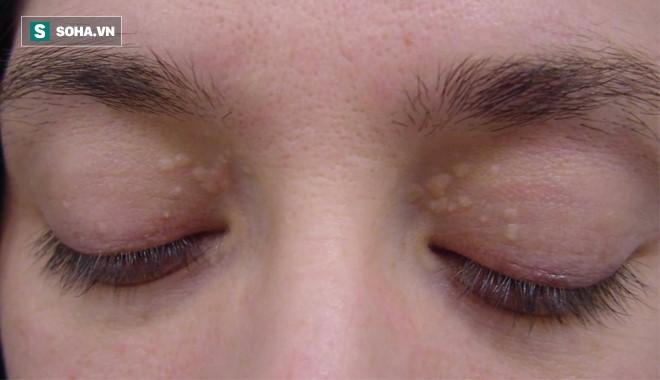 Mắt có một trong các dấu hiệu này, hãy cảnh giác nguy cơ mắc 9 loại bệnh nguy hiểm - Ảnh 1.