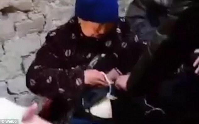Không có tiền phẫu thuật, bà cụ nghèo phải đeo túi nilon đựng... ruột suốt 20 năm trời - Ảnh 3.