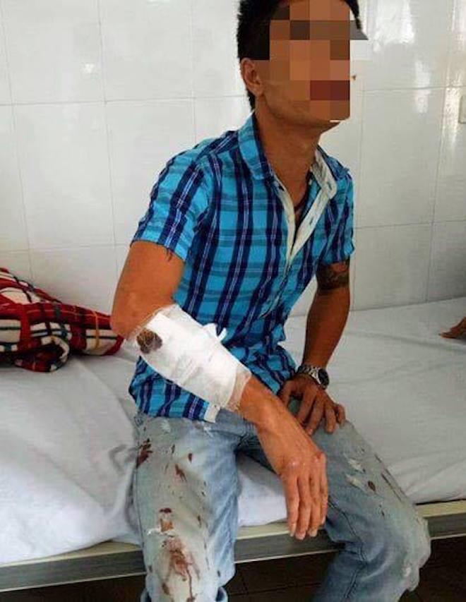 Tạm giam 2 thanh niên vác súng, dùi cui vào quán karaoke bắn nhiều người bị thương - Ảnh 2.