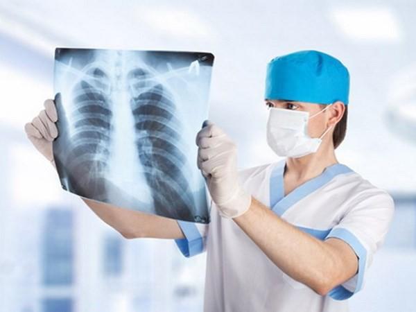 3 dấu hiệu của ung thư phổi: Chuyên gia nhắc dù chỉ 1 dấu hiệu nhỏ cũng không nên bỏ qua - Ảnh 4.