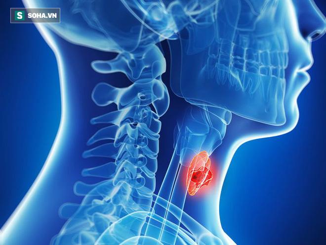 Ung thư vòm họng phát triển rất nhanh: Thấy có dấu hiệu sau thì khám ngay để ngăn ngừa - Ảnh 1.
