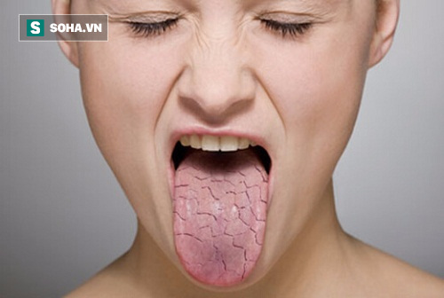 Dù rất chịu khó đánh răng, nhưng 6 nguyên nhân sau khiến miệng vẫn bị hôi - Ảnh 1.
