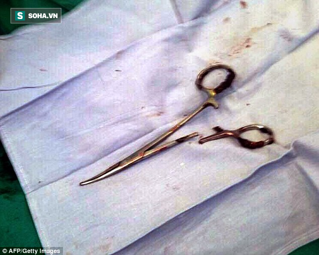 Bác sĩ Việt Nam bỏ quên kéo trong bụng bệnh nhân 18 năm khiến báo chí nước ngoài xôn xao - Ảnh 2.