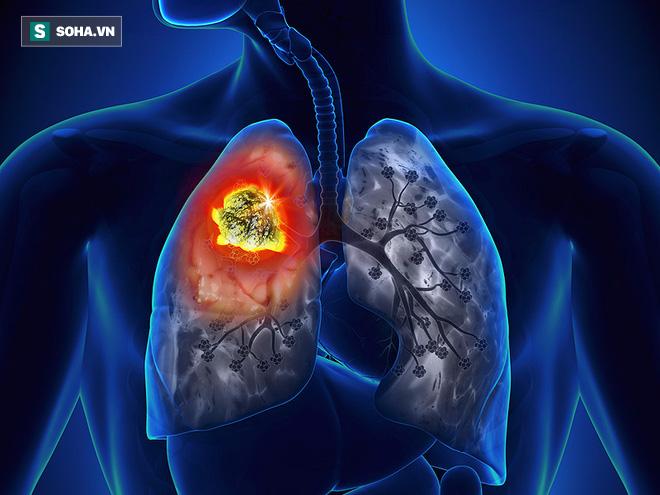 Bị chẩn đoán chỉ còn sống được 12 tháng, cô gái bị ung thư phổi làm nên điều kỳ diệu - Ảnh 2.