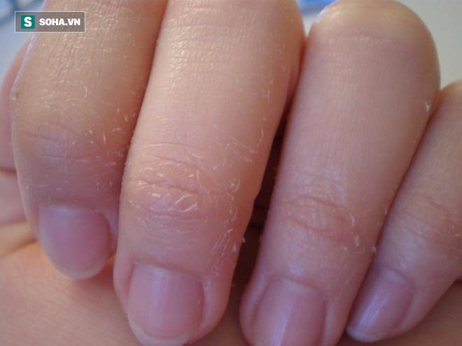Chuyên gia nổi tiếng Trung Quốc tiết lộ cách xem tay đoán bệnh chính xác của Đông y - Ảnh 5.