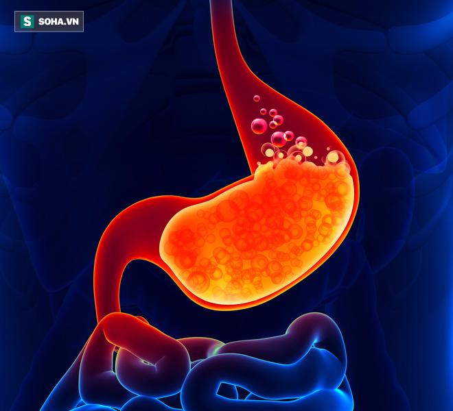 3 cách làm sạch ruột bạn phải biết vì cổ nhân dạy nếu không muốn chết, ruột đừng có cặn - Ảnh 1.