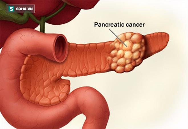 Ung thư có hơn 100 loại nhưng 4 loại sau gây đau đớn nhất - Ảnh 1.