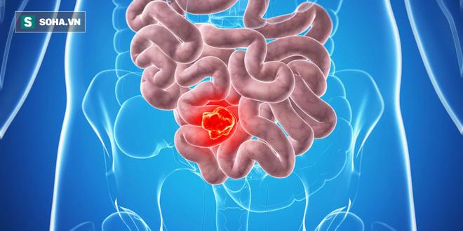 Ung thư đại tràng khó phát hiện, dễ nhầm lẫn: Thấy dấu hiệu này thì phải đi khám ngay - Ảnh 3.