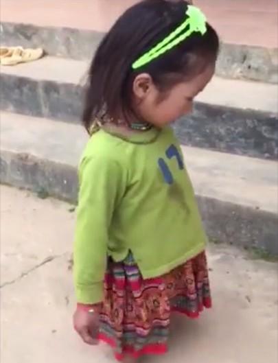 Bị cụt hai chân, bé gái lớp 1 phải cuốn giẻ vào đầu gối đi lại cho đỡ đau - Ảnh 1.