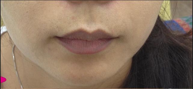 Đôi môi là cửa sổ của sức khỏe: Hãy xem môi bạn cảnh báo bệnh gì để khắc phục sớm - Ảnh 7.