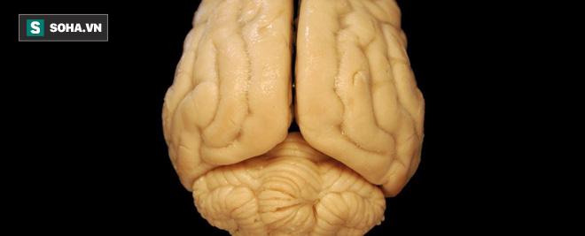 Điểm đặc biệt dị thường chỉ có trong não bộ của người 1 tay - Ảnh 1.
