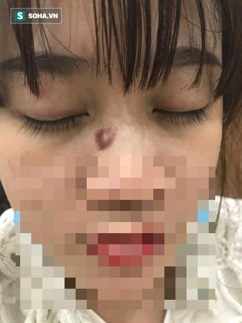 BS Bệnh viện 108: Cẩn thận với những nốt ruồi, điều trị sai lầm dễ ung thư hoá - Ảnh 1.