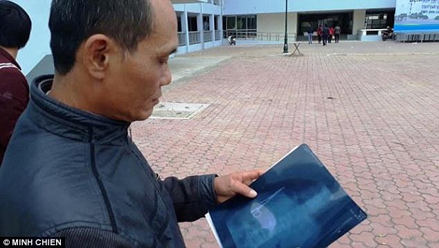 Bác sĩ Việt Nam bỏ quên kéo trong bụng bệnh nhân 18 năm khiến báo chí nước ngoài xôn xao - Ảnh 1.