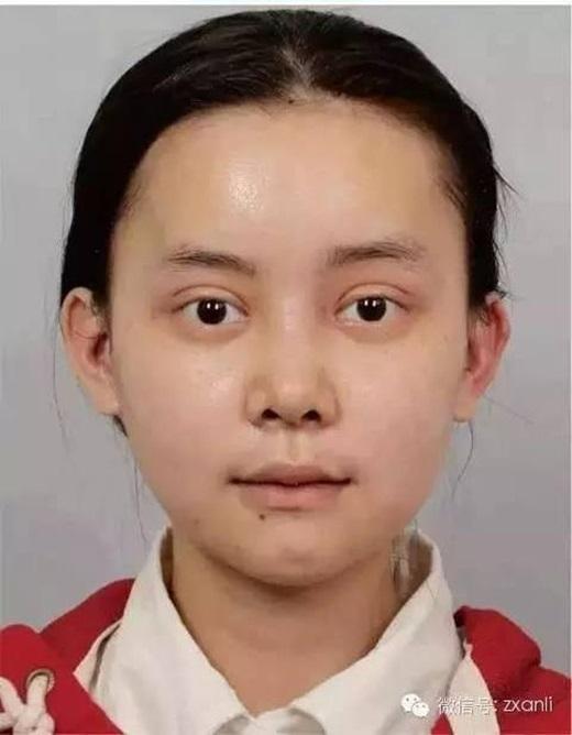 Cô gái trẻ chi hơn 3,2 tỷ đồng để phẫu thuật giống Angela Baby - Ảnh 10.