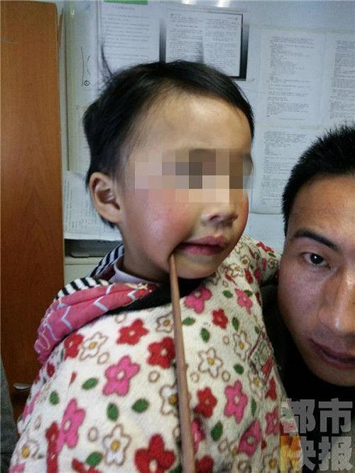 Nếu bạn vẫn còn nghĩ đũa ăn vô hại với trẻ nhỏ thì hãy xem những tai nạn kinh hoàng này - ảnh 1